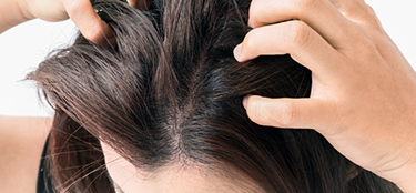 Itchy scalp – Overview about potential causes