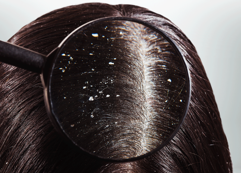 قشرة الشعر مشكلة مزعجة